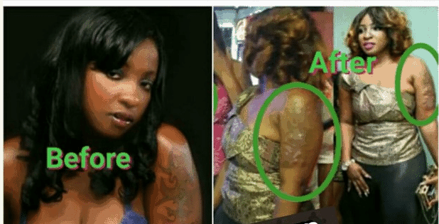 anita joseph before and after removal of tattoo